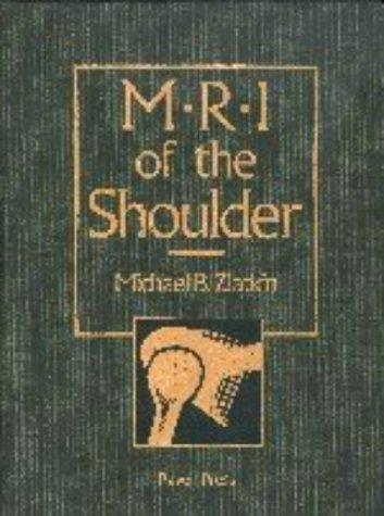 Download MRI of the shoulder