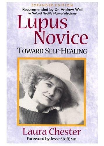 Download Lupus novice