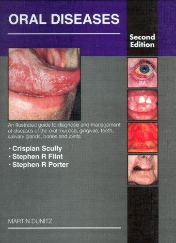 Download Oral Diseases