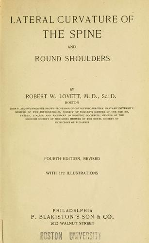 Download Lateral curvature of the spine and round shoulders