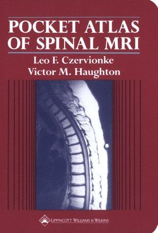 Pocket atlas of spinal MRI by Leo F. Czervionke