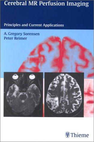 Cerebral Mr Perfusion Imaging by A. Gregory Sorensen